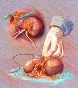 nephrectomy